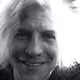 Steven Adler: Way More Rockstars Than You Think Had Hair Loss Treatment, Including Me